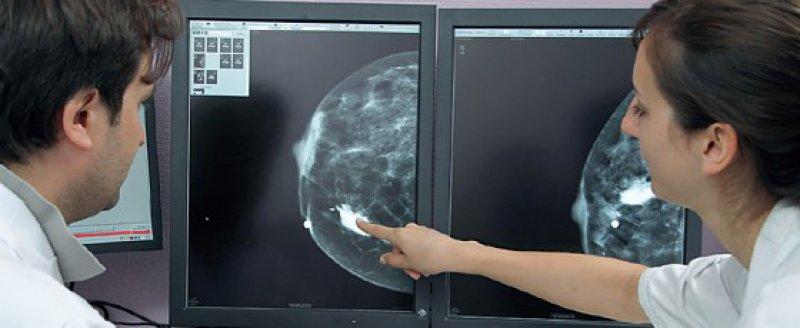 Unter www.gutinformiert.de beantwortet der Krebsinformationsdienst des Deutschen Krebsforschungszentrums Fragen zur Brustkrebsfrüherkennung. Foto: picture alliance