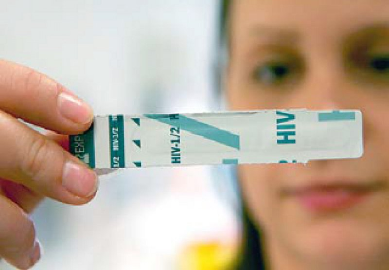 Der HIV-Schnelltest ist eines der Angebote des Modellprojekts. Foto: picture alliance
