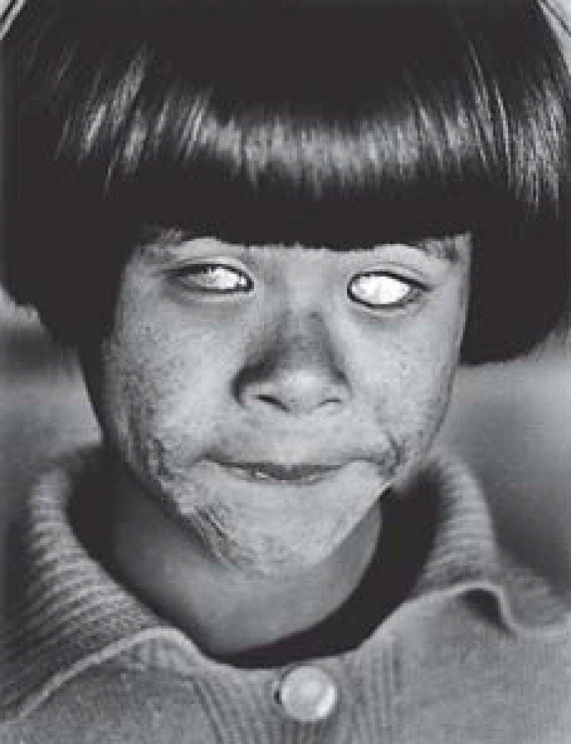 """Blind girl"", Hiroshima 1963, Fotos: Christer Strömholm/Strömholm Estate"