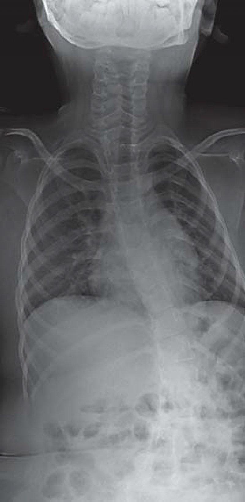 Röntgenaufnahme von der verkrümmten Wirbelsäule eines Jungen. Foto: dpa