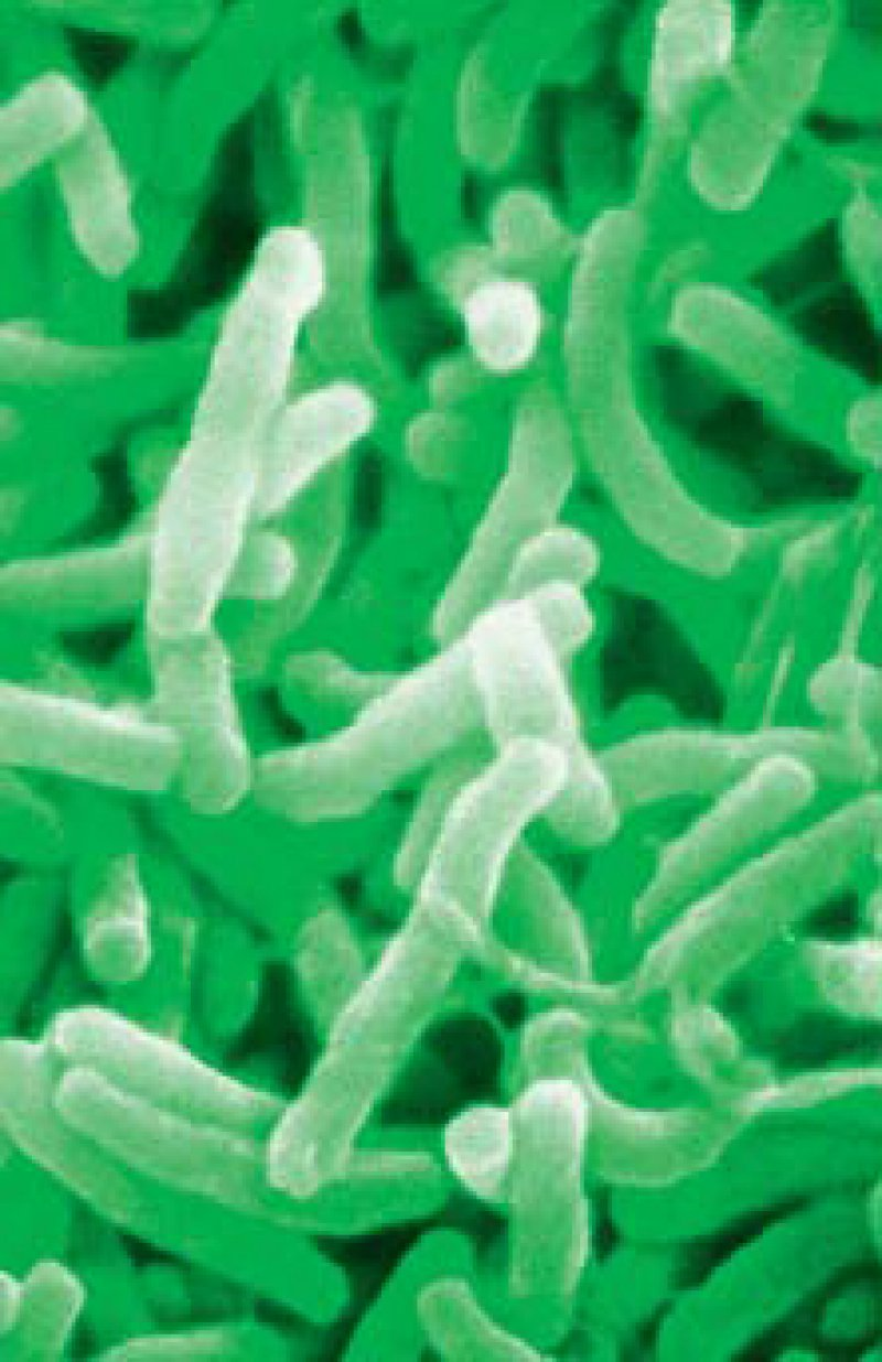 Die Cholera-Vibrionen werden durch verunreinigtes Wasser verbreitet. Foto: Your Photo Today