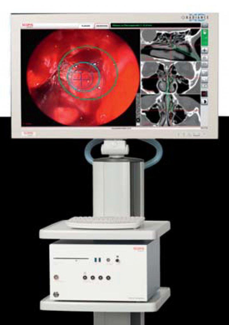 Optische und elektromagnetische Navigation in einem System – der HNO-Chirurg kann indikationsbezogen wählen. Foto: Scopis
