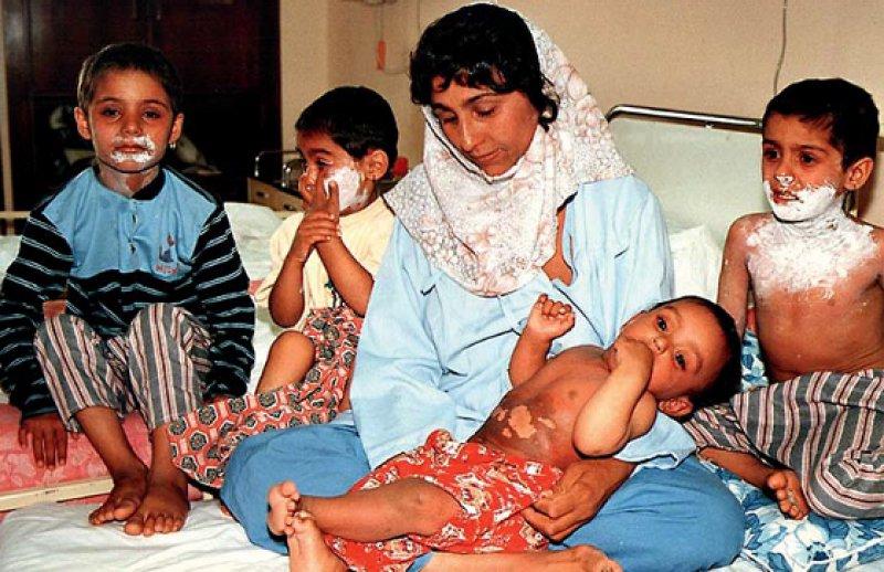 Überlebende: Eine Mutter und ihre Kinder, Opfer eines Giftgasangriffs, werden im Krankenhaus behandelt. Die historische Aufnahme ist Teil der Fotodokumentation im Friedensmuseum in Teheran. Fotos: Tehran Peace Museum, privat