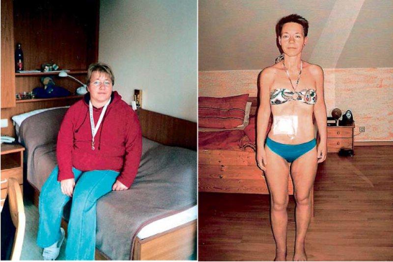 Dramatischer Gewichtsverlust: Als Folge ihrer Erkrankung stieg Jana Seifrieds Körpergewicht zunächst auf 140 Kilogramm an (li), bevor es, nach zahlreichen Operationen, auf 50 Kilogramm fiel (re). Fotos: privat