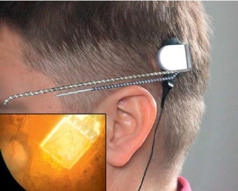 Ein ultradünnes Kabel wird vom Chip im Auge entlang der Kopfseite hinter das Ohr des Patienten verlegt. Dort befindet sich der Anschluss für das Steuergerät. Mit einem Steuergerät lassen sich Helligkeit und Kontrast des Bildes nachregeln. Foto: Retina Implant AG