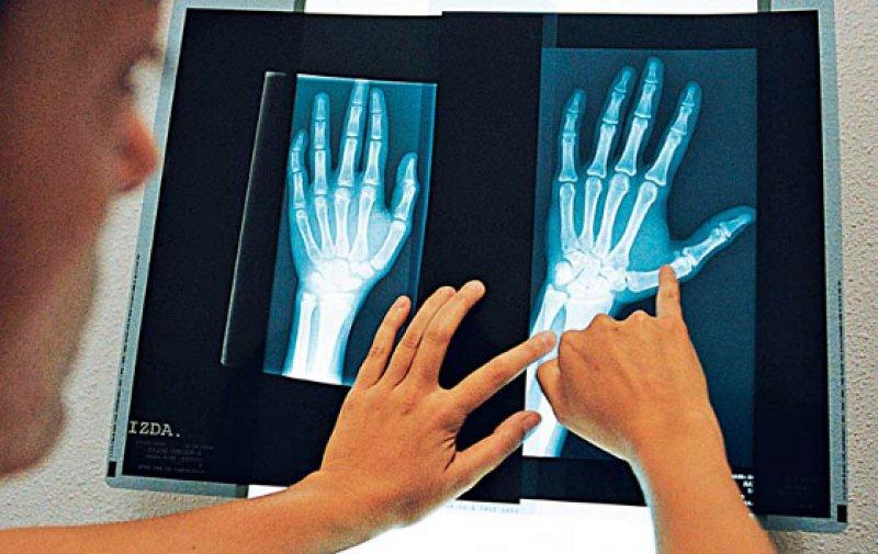 Handröntgenaufnahmen werden oft von der Polizei angefordert, um das Alter von jugendlichen Flüchtlingen bestimmen zu lassen. Kritikern ist das Verfahren zu ungenau. Sie fordern außerdem, dass die Indikation für Röntgenaufnahmen ärztlich gestellt werden muss. Foto: laif