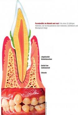 Parodontitis im Modell und real