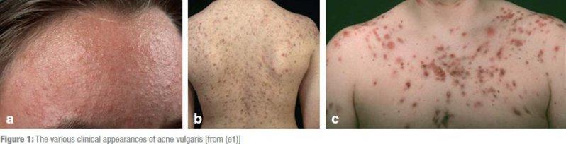 The various clinical appearances of acne vulgaris