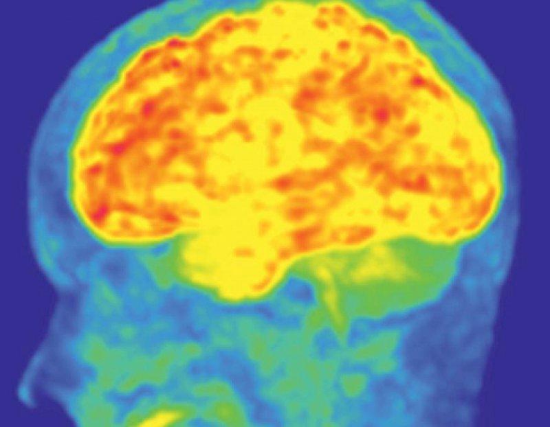 Ein prädiktiver Wert der Amyloid-Plaque-Bildgebung in der Frühdiagnose der Alzheimer-Krankheit ist mit großer Wahrscheinlichkeit gegeben, muss aber in größeren longitudinale Stu dien belegt werden. Abbildung: Alexander Drzezga