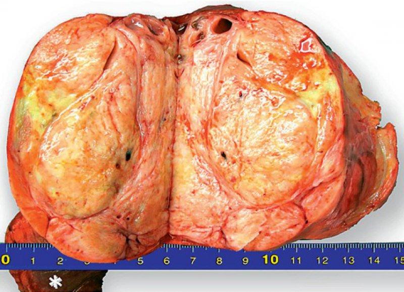 Bild 2: Makroskopischer Aspekt des Tumors. Sternchen = atelektatischer Lungenlappen