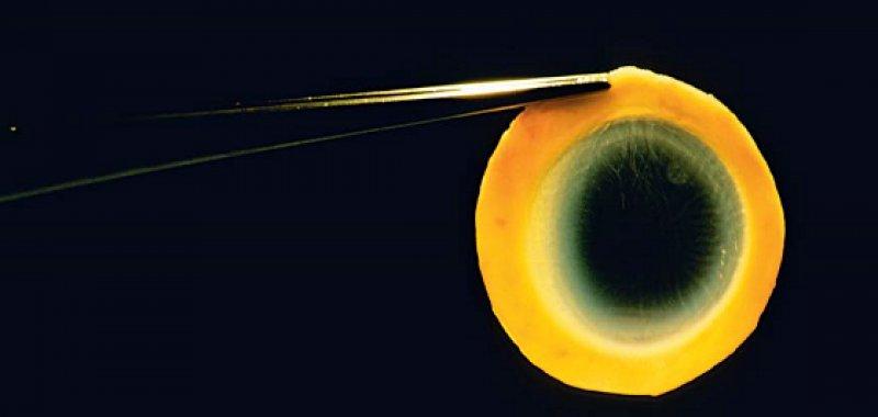 Explantierte Augenhornhaut wird für die Transplantation vorbereitet. Foto: siencephotolibrary