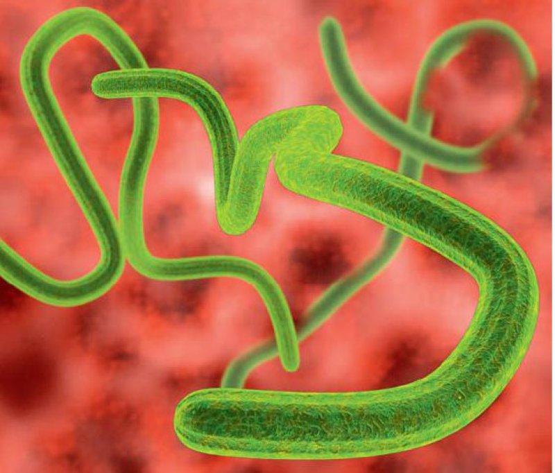 Ebolavirus ist eine Gattung aus der Familie der Filoviridae. Diese Gattung umfasst fünf Spezies und 14 Subtypen. Bei Menschen lösen sie hämorrhagisches Fieber aus. Foto: Roger Harris/SPL/Agentur Focus