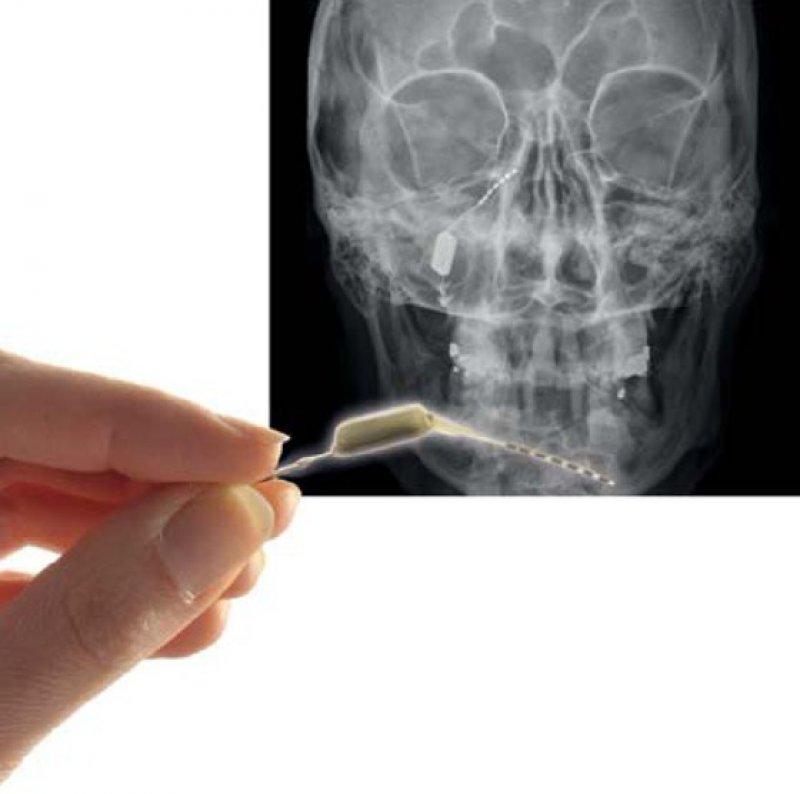 Der Neurostimulator wird dem Patienten über einen kleinen Einschnitt im Zahnfleisch eingesetzt und vom Arzt programmiert. Der Patient steuert die Therapie selbst per Fernbedienung. Foto: ATI