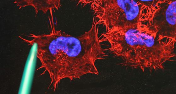 Angefärbte Melanomzellen /dpa