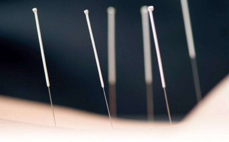 Die Punktwahl spielt bei der Akupunktur eine Rolle, obwohl die Unterschiede im Vergleich zur Scheinakupunktur klein sind. Foto: iStockphoto