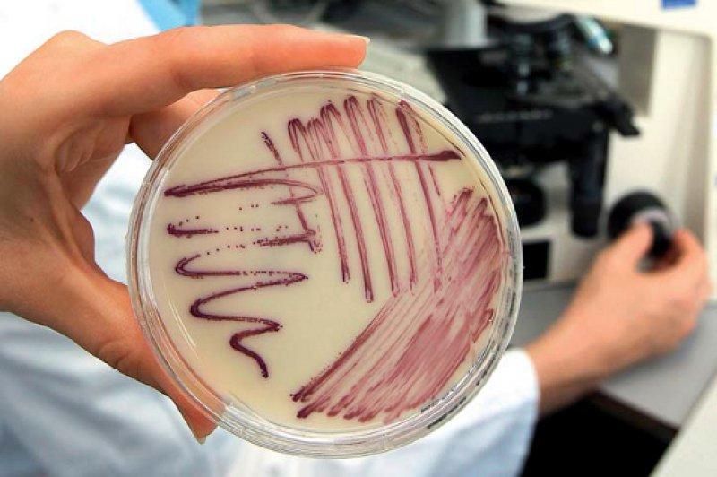 Eine Petrischale mit MRSA-Keimen (Methicillinresistente Staphylococcus aureus) aus einem Lebensmittel wird in der Mikrobiologie des Chemischen und Veterinäruntersuchungsamtes Stuttgart gezeigt. Foto: picture alliance
