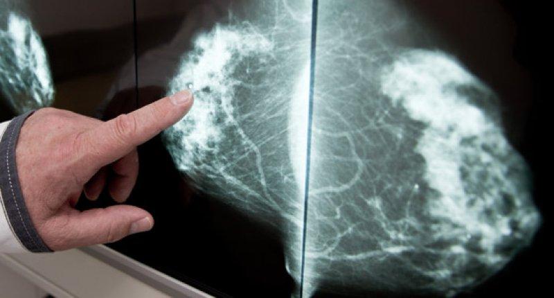 Brustkrebsgen