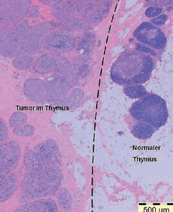 Tumorgewebe (links) im Thymus (rechts)