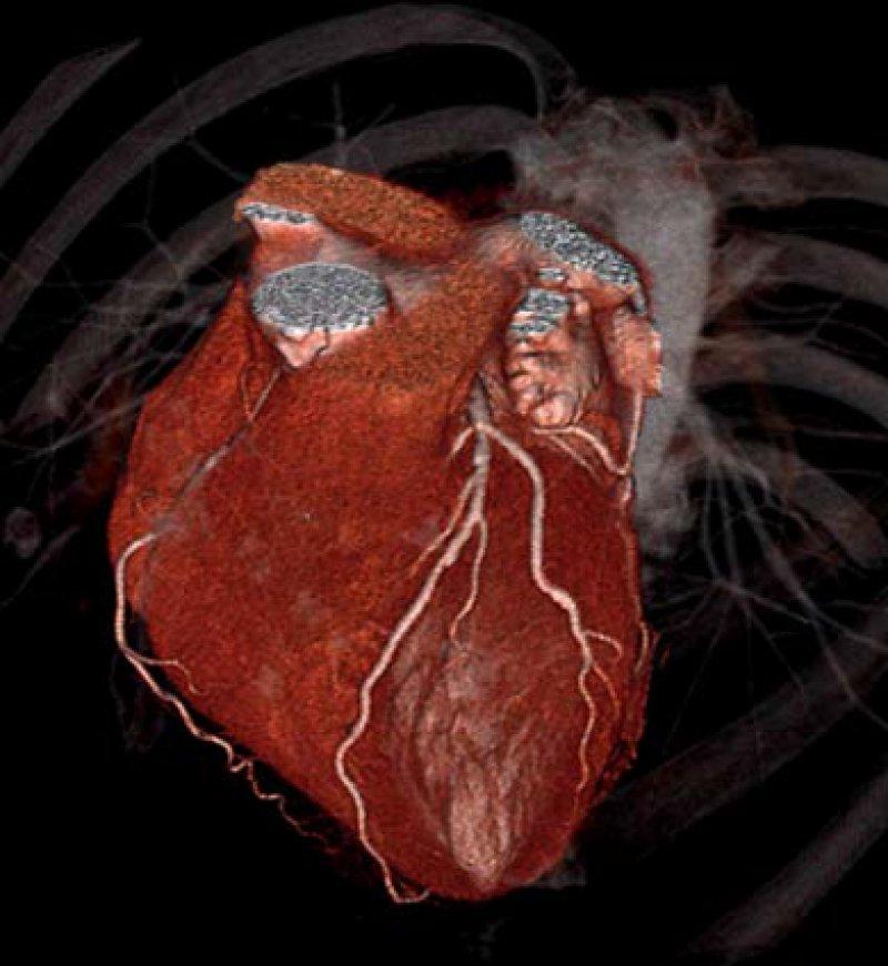Herz mit unauffälligen Koronararterien, untersucht mit 320-Zeilen-CT. Abbildung: Charité Berlin