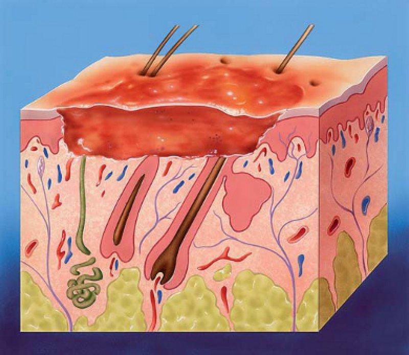 Die Verbrennungstiefe (in Grad angegeben) entscheidet darüber, ob die Wunde von selbst heilen kann, ob sie transplantiert werden muss oder ob Narben zurückbleiben. Foto: John Bavosi/SPL Agentur Focus