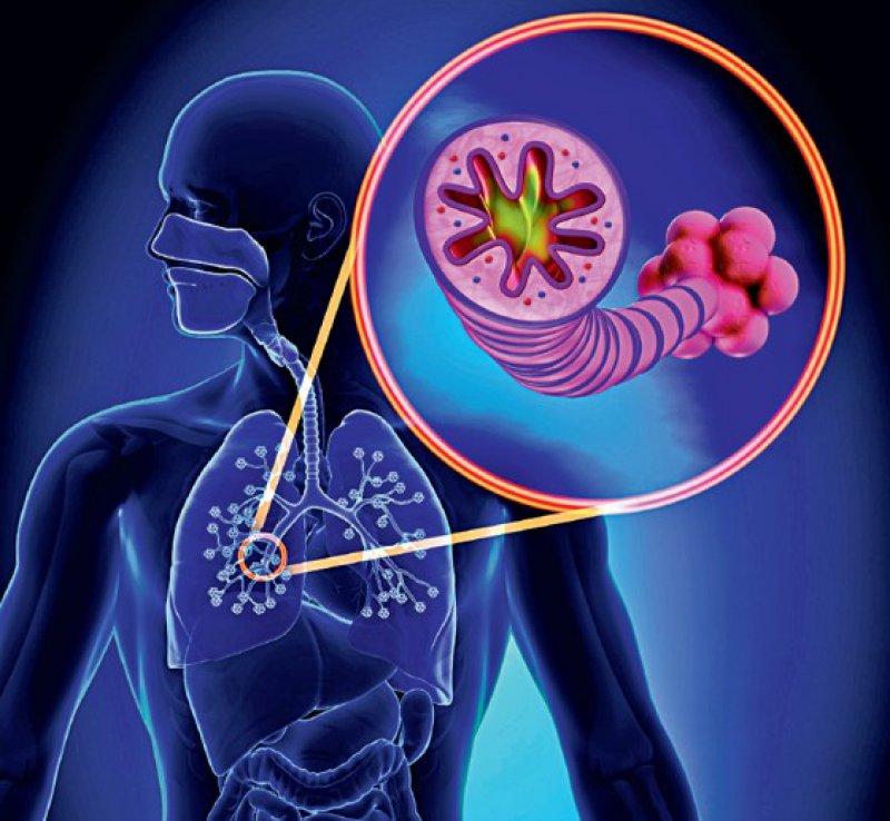 Eine Obstruktion der Atemwege, die von entzündlichen und fibrotischen Veränderungen begleitet wird, führt letztlich zu einer irreversiblen Schädigung des Lungenparenchyms. Foto: Can Stock Photo_Decade3D