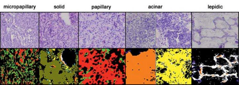 Subtypenerkennung für verschiedene Formen des Adenokarzinoms mittels spektraler Histopathologie (unten) und herkömmlich gefärbte Gewebeschnitte (oben). Die mit der SHP bestimmten Formen des Adenokarzinoms lassen eine Aussage zum Sterberisiko des Patienten zu, wobei mikropapilläre und solide das höchste Mortalitätsrisiko und lepidische das geringste innerhalb der Gruppe der Adenokarzinome besitzen. © RUB, LS Biophysik