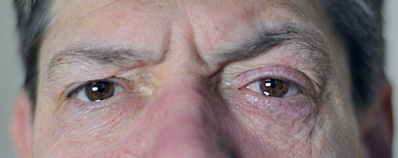 Beim Cluster-Kopfschmerz treten äußerst vernichtende Schmerzattacken von 15–180 Minuten Dauer bis zu achtmal pro Tag einseitig im Augenbereich, der Stirn oder der Schläfe auf. Foto: Prof. Dr. Hartmut Göbel, www.schmerzklinik.de