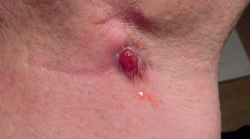 20 Monate nach Beginn: Verätzung der Gewebewucherung mit Silbernitrat-Ätzstift. Weitere Wundbehandlung mit Salben