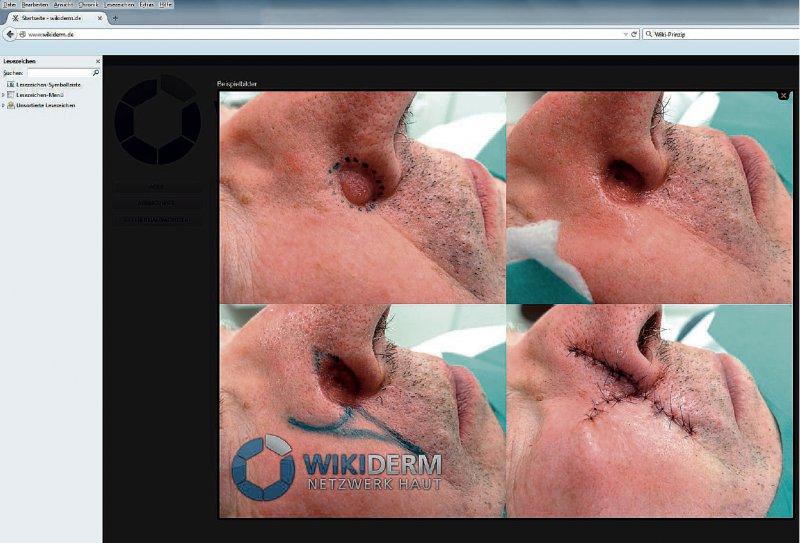 Nicht nur Hautärzten in der Ausund Weiterbildung bietet das Portal schnellen und unkomplizierten Informationszugang