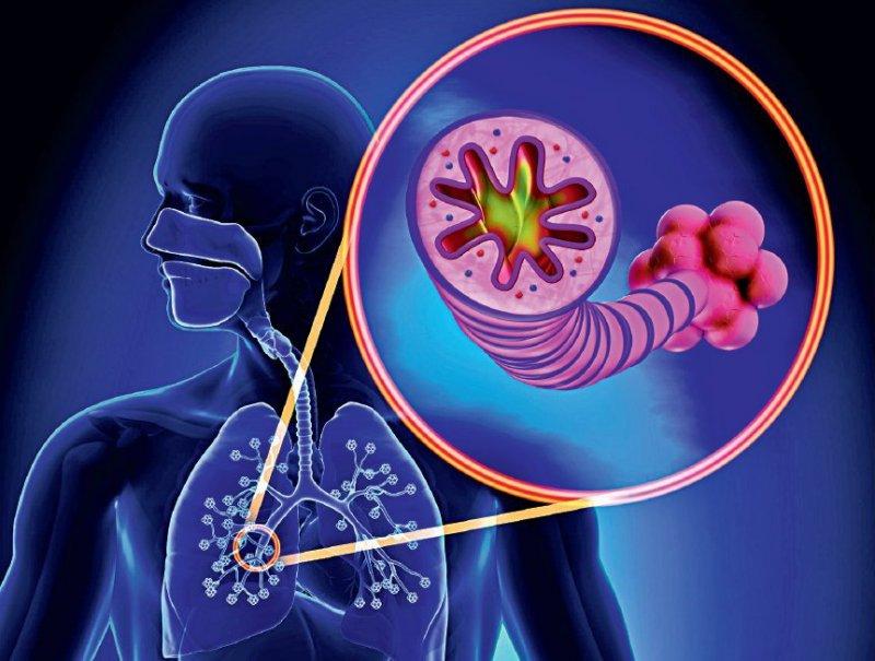 Viagra and atrial fibrillation