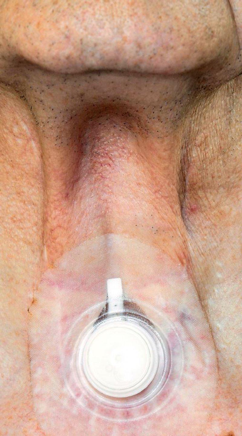 Patient mit Tracheostoma. Foto: SPL/Agentur Focus