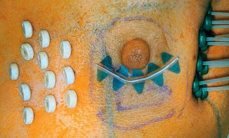 Multikatheter-Brachytherapie: Die Katheter lassen sich für jede anatomische Situation so konfigurieren, dass das Tumorbett optimal bestrahlt wird. Foto: Universitätsklinikum Erlangen
