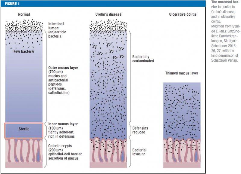 Inflammatory Bowel Disease: Crohn's disease and ulcerative