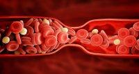 Schlaganfall: Niedriges LDL-Cholesterin verbessert Sekundärprävention