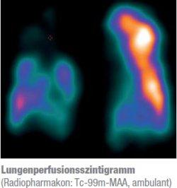 Lungen perfusionsszintigramm