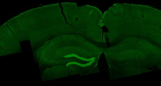 A TI stimulation excites an area in the mouse hippocampus, shown in bright green through c-fos labeling. /Nir Grossman, Suhasa B Kodandaramaiah, Andrii Rudenko