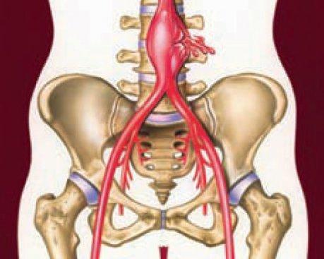 Aortenaneurysmen