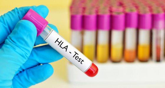 HLA-Test /jarun011 stock.adobe.com