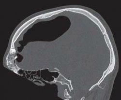 Spannungspneumozephalus durch ein Osteom der Stirnhöhle