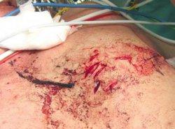 Thorakale Stichverletzung mit einem Brieföffner