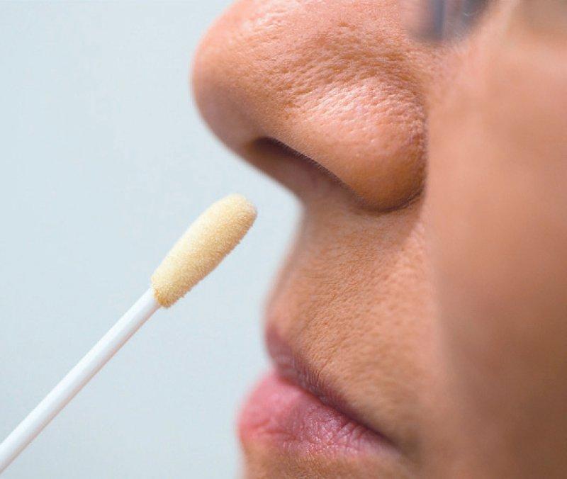 Der schmerzfreie MRSA-Test erfolgt über einen Abstrich, meist aus Nasenhöhle, Rachen oder Wunden. Foto: dpa