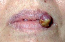 Pyogenes Granulom des Lippenrots der Oberlippe