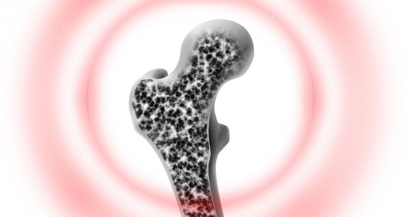 Arzneimittelkommission gibt Überblick über Osteoporosediagnostik und -therapie