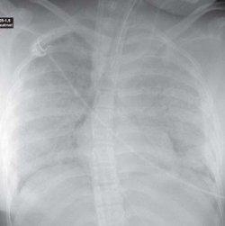 Röntgenaufnahme des Thorax (liegend) bei akutem Lungenschädigungssyndrom. Die vvECMO-Kanüle wurde bereits eingebracht. Deutlich sichbar ist die Totalverschattung beider Lungenflügel mit positivem Aerobronchopneumogramm