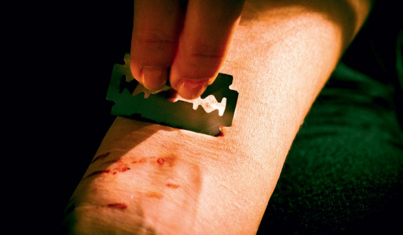 """Viele Jugendliche """"ritzen"""", um psychischen Druck zu kompensieren. Foto: picture alliance"""