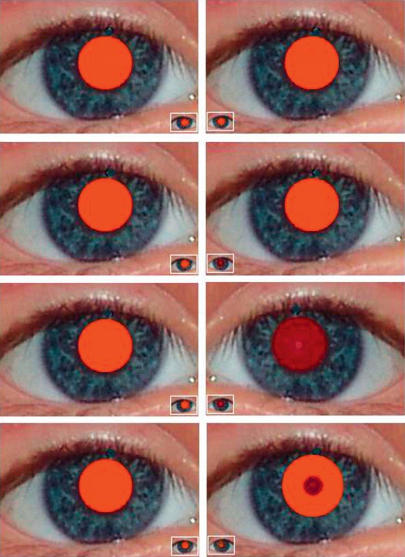Durchleuchtungstest in 10 cm (Inlay in 4 m) Oben: Normalbefund; Mitte oben: Anisometropie; Mitte unten: Diffuse Katarakt linkes Auge; Unten: hinterer Polstar linkes Auge. Foto: Michael Gräf