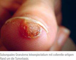 Subunguales Granuloma teleangiectatium mit colleretteartigem Rand um die Tumorbasis