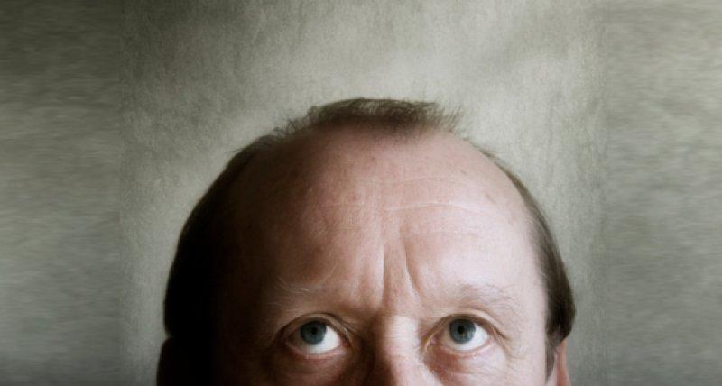 Kopf mit Haarausfall