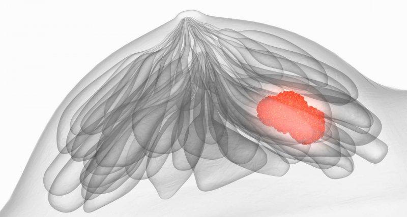 HER2-positives Mammakarzinom: Tucatinib verbessert Überlebenszeiten