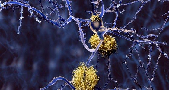 Neuron mit Amyloid-Plaques - Alzheimertherapie